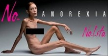拒食症に苦しんだフランス人元モデルが死亡。