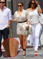 【イタすぎるセレブ達】キム・カーダシアン、魅惑のナマ足に無数の赤い虫さされ痕! 一体どうしたの?