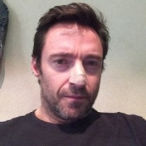 【イタすぎるセレブ達・Flash】ヒュー・ジャックマン、皮膚がんを公表。