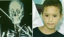 【南米発!Breaking News】首に鉄の棒が貫通した10歳少年、奇跡的に無事。(ブラジル)