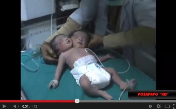 インドで結合双生児誕生。 画像はYouTubeのスクリーンショット