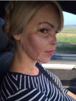 【イタすぎるセレブ達・番外編】顔に硫酸をかけられた元モデル、ケイティ・パイパー。間もなく出産へ。