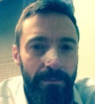 【イタすぎるセレブ達・番外編】ヒュー・ジャックマン、皮膚がん再発。鼻の手術を受けていた。