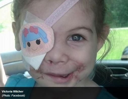 【米国発!Breaking News】米・KFC、犬に襲われ眼球を失った3歳女児を入店拒否。(ミシシッピ州)