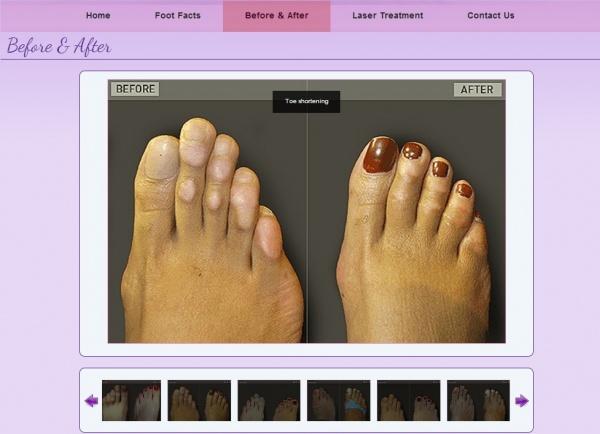 足のサイズを小さくする整形手術が話題に(画像はfootdocga.comのスクリーンショット)
