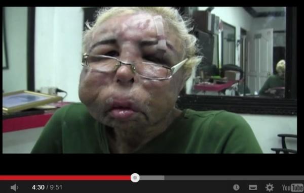 【南米発!Breaking News】美顔目的で、ベビーオイルを17年も顔に注入し続けたメキシコ人。<動画あり>