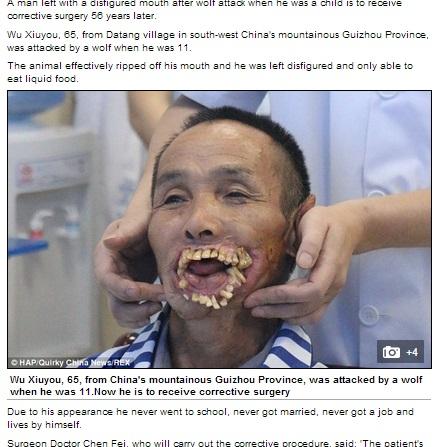 狼に咬まれて口元が変形した中国人男性(画像はdailymail.co.ukのスクリーンショット)
