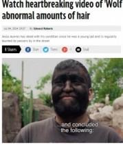 """【南米発!Breaking News】家系の30人が同じ病気。メキシコの""""狼男""""が「先天性多毛症を理解して」!"""