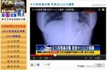 【アジア発!Breaking News】咳と胃痛に悩まされていた女性。原因は胃の中の万年筆だった!(台湾)