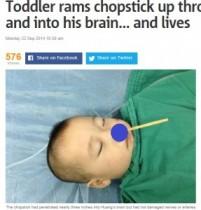 【海外発!Breaking News】箸が鼻から脳へと突き刺さった2歳児。奇跡的に損傷を免れる。(中国)