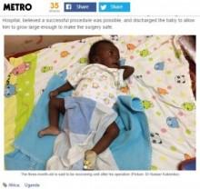 【アフリカ発!Breaking News】手足が8本。ウガンダで生まれた赤ちゃん、切除手術が無事成功。