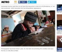 【海外発!Breaking News】「紅皮症を理解して!」と16歳少年。次々と剥がれ落ちる皮膚。(インドネシア)