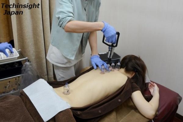 全身の懲りと浮腫みに悩む女性が体験 ツボからカッピング