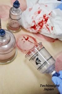 「瀉血(しゃけつ)」された血液。浮腫みがあるため、ドロドロせずサラッとしている。