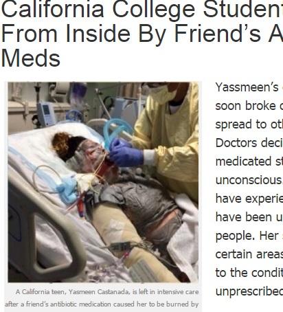 【海外発!Breaking News】抗生物質1錠で命の危険が! 19歳女性を突然襲った「スティーブンス・ジョンソン症候群」(米)