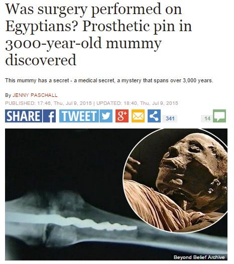 【海外発!Breaking News】古代エジプト人に人工関節技術、ミイラの膝から23cmのボルト。