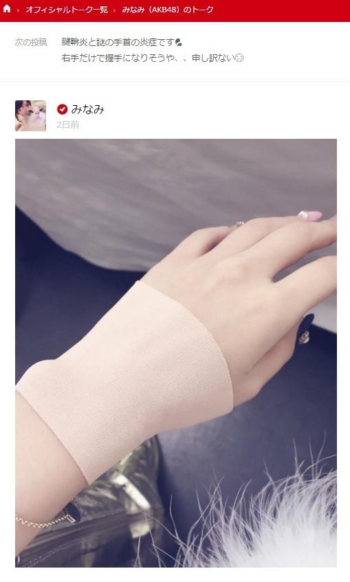 たかみなが、腱鞘炎と謎の手首の炎症(画像は『755 みなみ(AKB48)のトーク』のスクリーンショット)