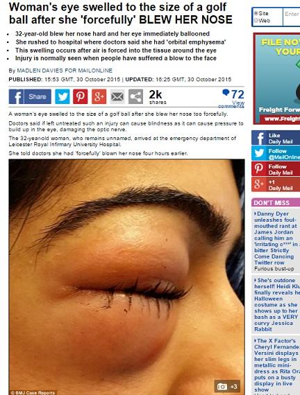 【海外発!Breaking News】鼻をかんだら瞼が肥大した32歳女性(英)