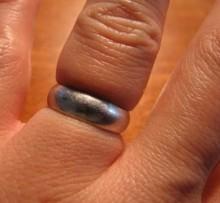 【海外発!Breaking News】婚約解消した男性、なかなか指輪が外れず消防局へ(英)