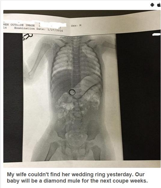 【海外発!Breaking News】なくしたと思った結婚指輪 わが子のレントゲン写真で発見!