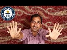 【海外発!Breaking News】手足の指が計28本 インドの男性『ギネス世界記録』に<動画あり>