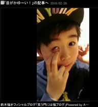 【エンタがビタミン♪】鈴木福くん、花粉症に悩まされる 我が子のように心配するファン続出