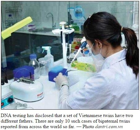 【海外発!Breaking News】双子なのに似ていない…DNA鑑定で父親が違うと判明(ベトナム)