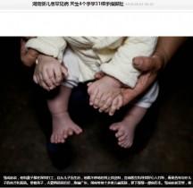【海外発!Breaking News】手指15本、足指16本 「息子の手術費のため温かいご寄付を」と中国人夫婦