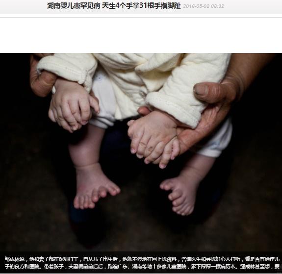 多指症の男児に「手術代にご寄付を」と両親(出典:http://news.163.com)