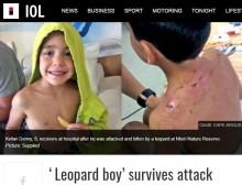 【海外発!Breaking News】自然保護区のヒョウ、6歳児に飛びかかる(南ア)