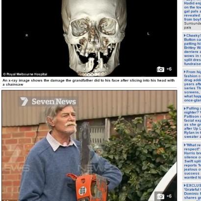 【海外発!Breaking News】チェーンソーで顔面を割った男性 自らの運転で病院へ(豪)