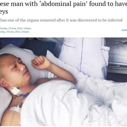 【海外発!Breaking News】「腎臓が4つもあった」中国の男性 腹痛で発覚
