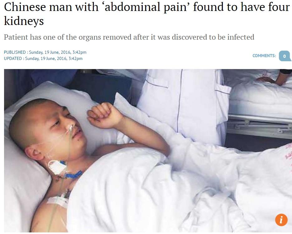 4つの腎臓を持っていた男性(出典:http://www.scmp.com)