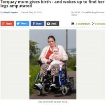 帝王切開後目覚めた女性「私の足はどこに…」 医師の怠慢が招いた悲劇(英)