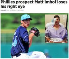 【海外発!Breaking News】「ゴムチューブ」筋トレ中に悲惨な事故 米・22歳野球選手が眼球摘出