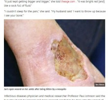 【海外発!Breaking News】人食いバクテリアより恐ろしい 蚊が媒介 肌がゾンビと化す「ブルーリ潰瘍」が豪で急増