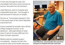 「ビール腹と思っていた」男性 27kgの腫瘍を摘出(チェコ)