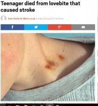 【海外発!Breaking News】恋人が付けたキスマークが血栓に 脳梗塞で17歳少年が死亡(メキシコ)