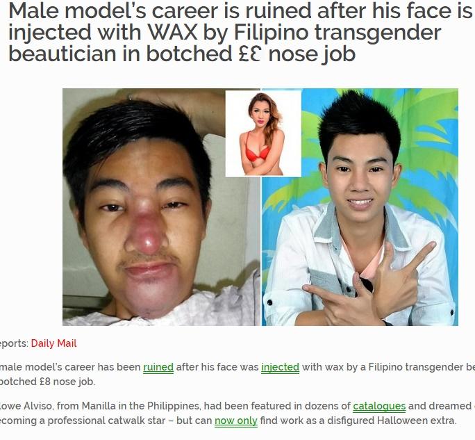 【海外発!Breaking News】鼻と顎の美容整形に大失敗 イケメンモデルのキャリアが台無しに(フィリピン)
