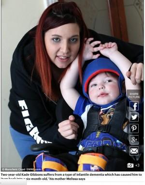 【海外発!Breaking News】10万人に1人『幼児性認知症』を患う2歳男児 「一晩で新生児に戻ってしまった」(英)