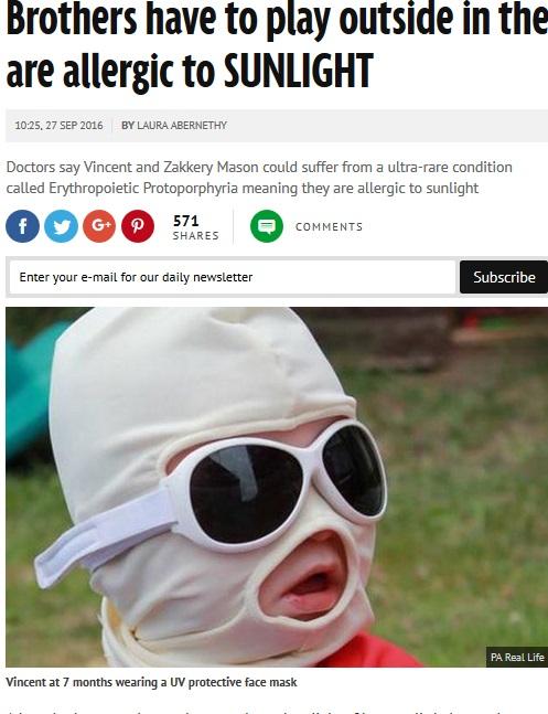 太陽の光にアレルギー反応する少年(出典:http://www.mirror.co.uk)