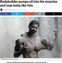【海外発!Breaking News】「理想はアーノルド・シュワルツェネッガー」 体にオイルを注入し続ける男性(ブラジル)