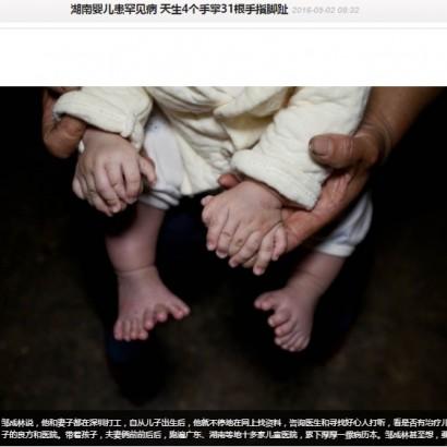 【海外発!Breaking News】手足に31本「多指症」の赤ちゃん、手術完了は3歳(中国)