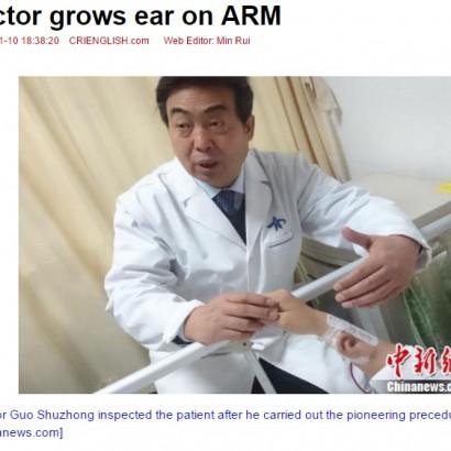 【海外発!Breaking News】交通事故で耳を失った男性 自分の腕で耳介を再建中(中国)