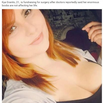 【海外発!Breaking News】Hカップの美女「胸の縮小手術を受けたい」ネット募金に訴える(英)