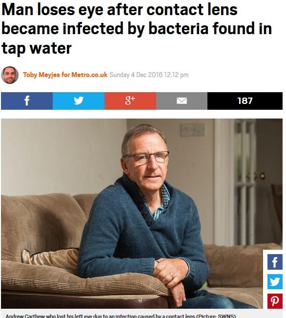 コンタクト使用でバクテリア感染、失明した男性(出典:http://metro.co.uk)
