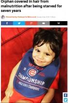 【海外発!Breaking News】「7年間、空気で満腹感を得ていた」 極度の栄養失調の7歳児が奇跡の回復(米)