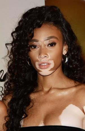 【イタすぎるセレブ達】世界が注目する尋常性白斑の美人モデル 「肌について話すのはウンザリ」