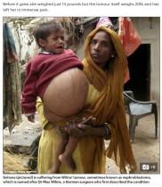 9キロの腫瘍を持つ2歳の女児、痛ましい姿に募金集まる(印)