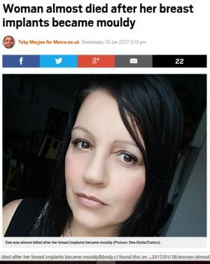 【海外発!Breaking News】豊胸手術のインプラントにカビ 危うく命を失いかけた5児の母(米)